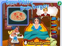 Alba ca Zapada Operatie pe Creier