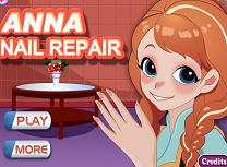 Anna Repara Unghiile