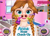 Anna Tratament la Nas
