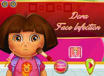 Dora Infectie la Fata