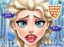 Elsa Probleme cu Dintii