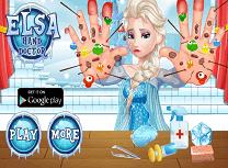 Elsa Probleme la Maini