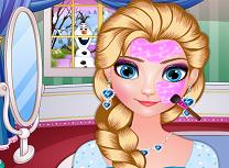 Elsa Timpul Pentru Tratamente Faciale