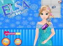Elsa Implant de Par