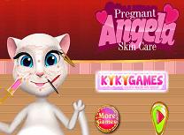 Gravida Angela Tratamente Pentru Piele