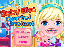 Micuta Elsa Implant Dentar