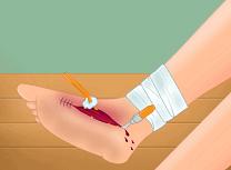 Operatie la Picior 2