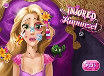 Rapunzel Este Ranita
