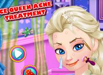 Regina Elsa Are Cosuri