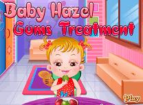 Tratament Pentru Hazel