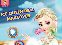 Tratamente Faciale Pentru Regina Elsa