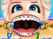 Bebelusa Elsa Aparat Dentar