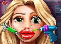 Goldie Injectie in Buze