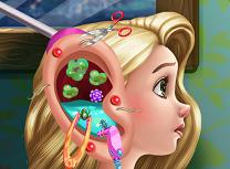 Rapunzel Infectie la Ureche